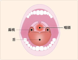 写真 咽頭クラミジア